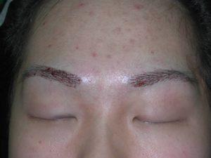eyebrow transplant after image